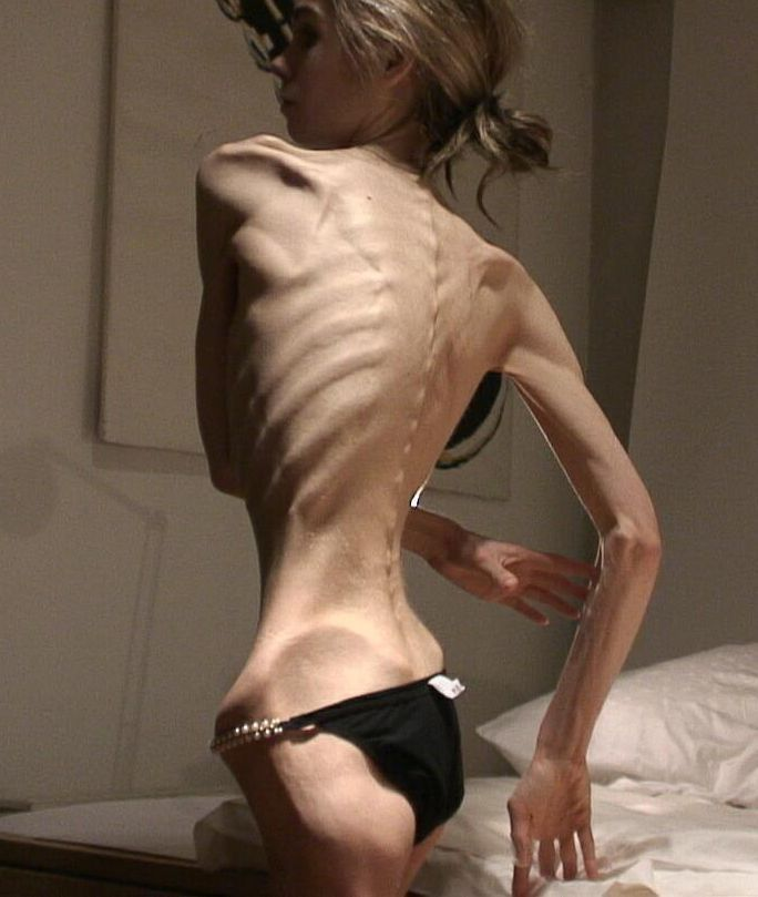 anorexia5